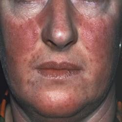 aloe vera for psoriasis treatment